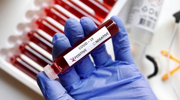 नेपालमा आज थपिए २२४ कोरोना संक्रमित